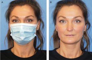 Usar máscaras rejuvesnece  Cobrir o parte do rosto diminui de 3 a 5 anos, aponta Estudo Científico