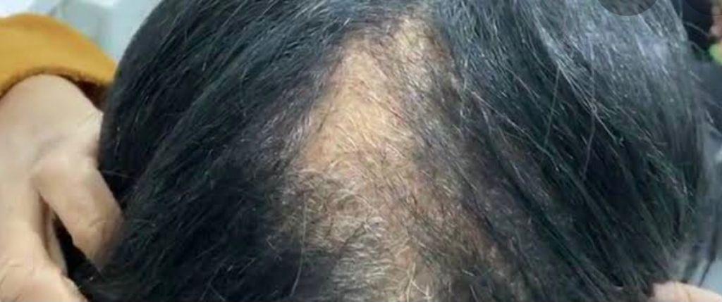 Como tratar queda de cabelo pós Covid-19.  Saiba a causa e como recuperar a beleza dos seus cabelos